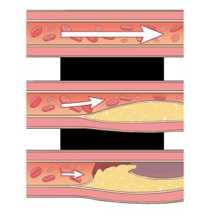 clogged-blood-vessels